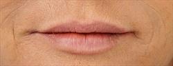Restylane lip na | Salon Esthétique