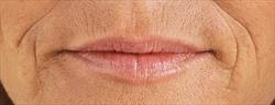 Restylane lip voor | Salon Esthétique