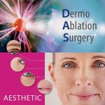 Dermo Ablation Surgery | Salon Esthétique Stramproy Limburg