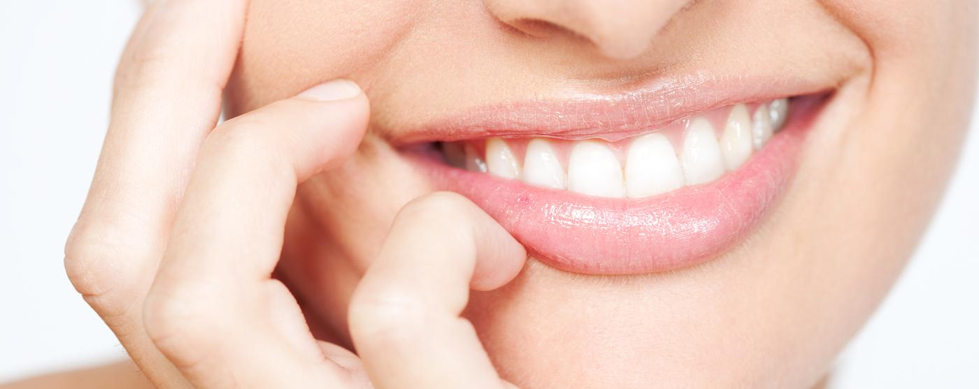 Tanden bleken Salon Esthétique Stramproy Weert